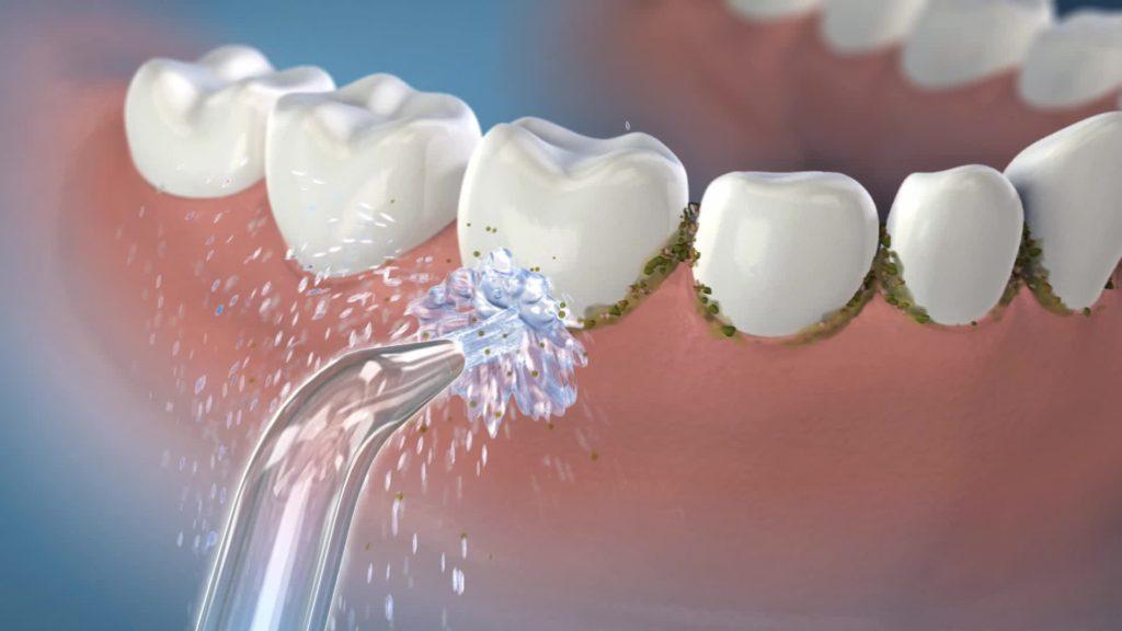 Cum alegi un irigator (duş) bucal? Modele şi recomandări